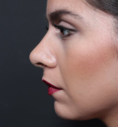Rhinoplasty Gallery - Patient 14089522 - Image 6