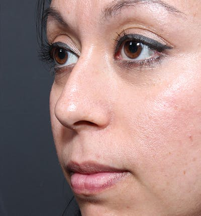 Rhinoplasty Gallery - Patient 14089523 - Image 1