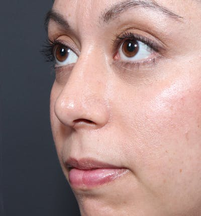 Rhinoplasty Gallery - Patient 14089523 - Image 2