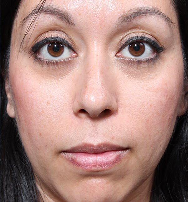Rhinoplasty Gallery - Patient 14089523 - Image 3