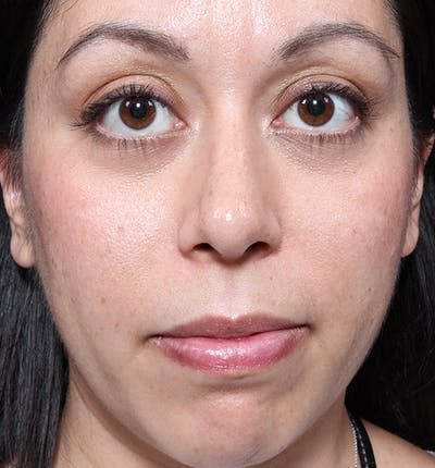 Rhinoplasty Gallery - Patient 14089523 - Image 4