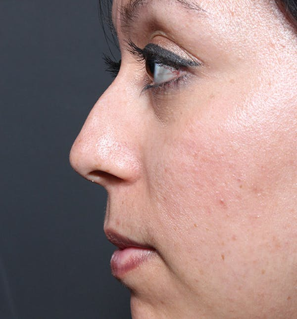 Rhinoplasty Gallery - Patient 14089523 - Image 5