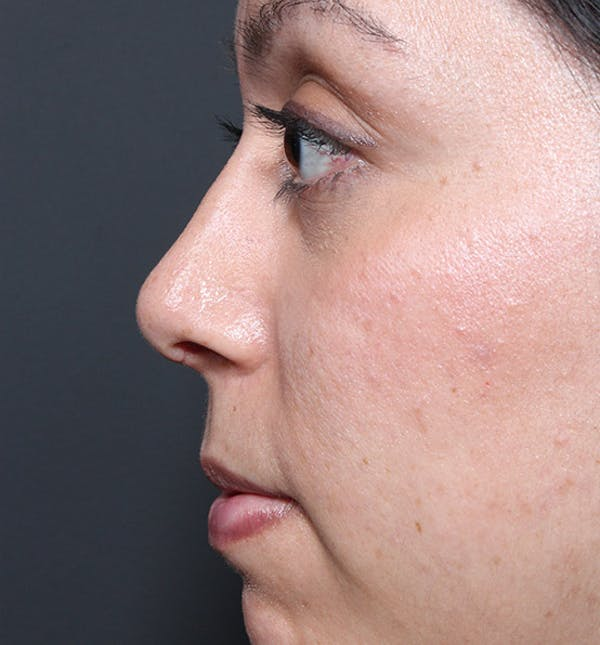 Rhinoplasty Gallery - Patient 14089523 - Image 6