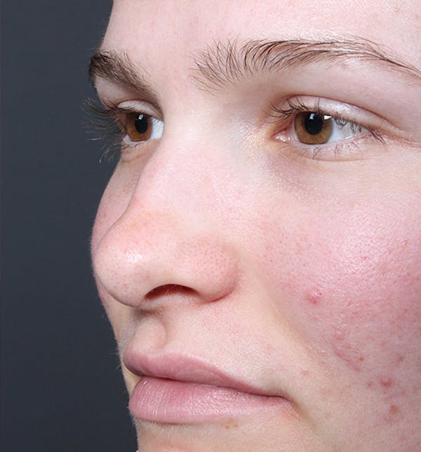 Non-Surgical Rhinoplasty Gallery - Patient 14089528 - Image 1