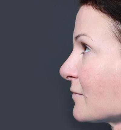 Rhinoplasty Gallery - Patient 14089527 - Image 6