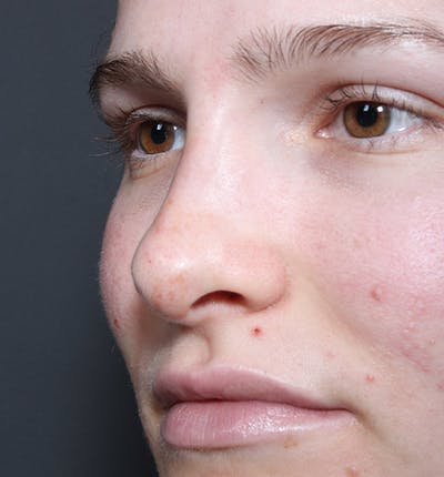 Non-Surgical Rhinoplasty Gallery - Patient 14089528 - Image 2