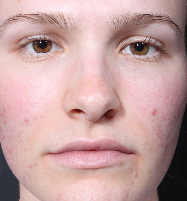 Non-Surgical Rhinoplasty Gallery - Patient 14089528 - Image 3