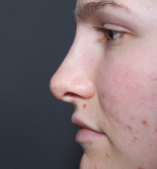 Non-Surgical Rhinoplasty Gallery - Patient 14089528 - Image 6