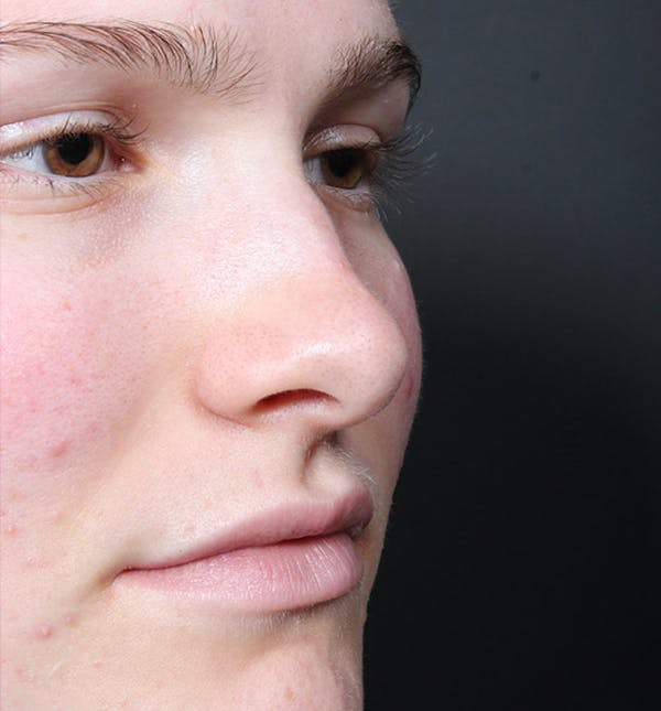 Non-Surgical Rhinoplasty Gallery - Patient 14089528 - Image 7