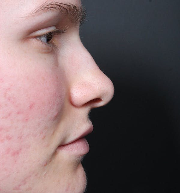 Non-Surgical Rhinoplasty Gallery - Patient 14089528 - Image 9