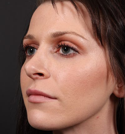 Non-Surgical Rhinoplasty Gallery - Patient 14089531 - Image 1