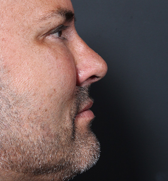 Male Rhinoplasty Patient Before