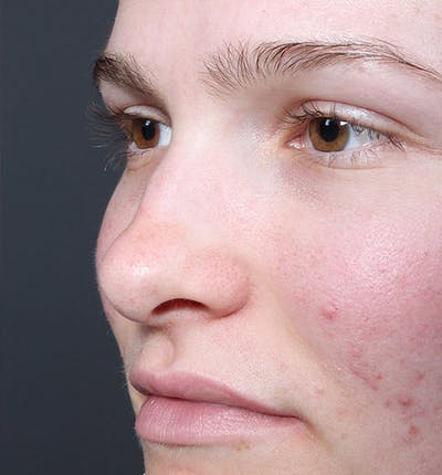 Rhinoplasty Gallery - Patient 14089533 - Image 1