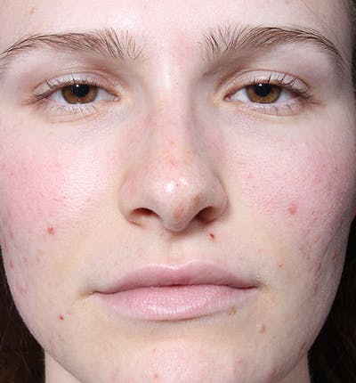 Rhinoplasty Gallery - Patient 14089533 - Image 4