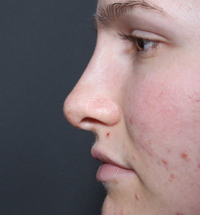 Rhinoplasty Gallery - Patient 14089533 - Image 6