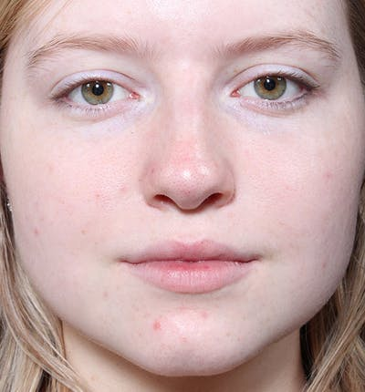Non-Surgical Rhinoplasty Gallery - Patient 14089534 - Image 4