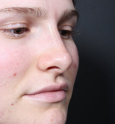 Rhinoplasty Gallery - Patient 14089533 - Image 8