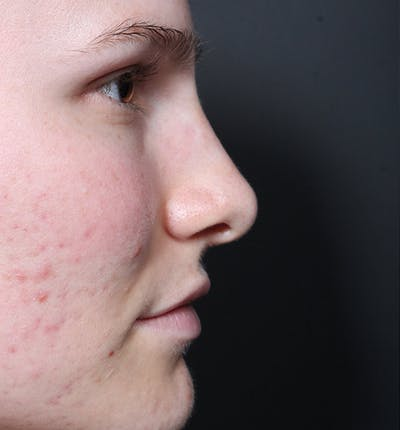 Rhinoplasty Gallery - Patient 14089533 - Image 10