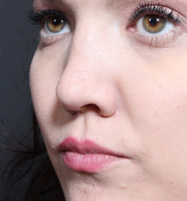 Rhinoplasty Gallery - Patient 14089536 - Image 1
