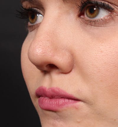 Rhinoplasty Gallery - Patient 14089536 - Image 2