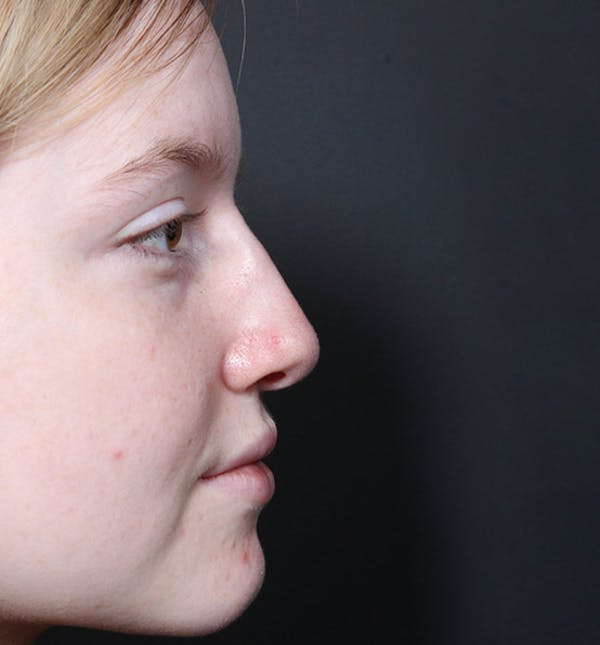 Non-Surgical Rhinoplasty Gallery - Patient 14089534 - Image 10