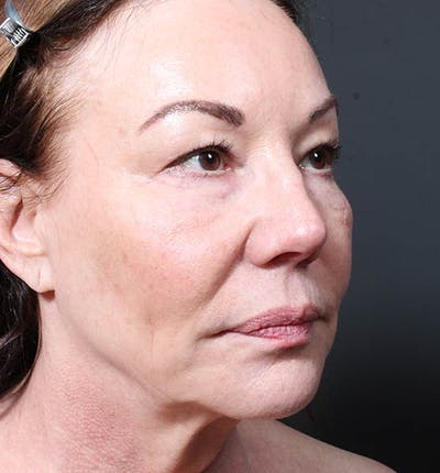 Facelift Gallery - Patient 14089535 - Image 1