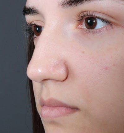 Non-Surgical Rhinoplasty Gallery - Patient 14089538 - Image 1