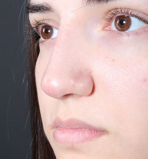 Non-Surgical Rhinoplasty Gallery - Patient 14089538 - Image 2