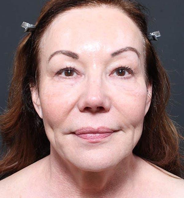Facelift Gallery - Patient 14089535 - Image 3