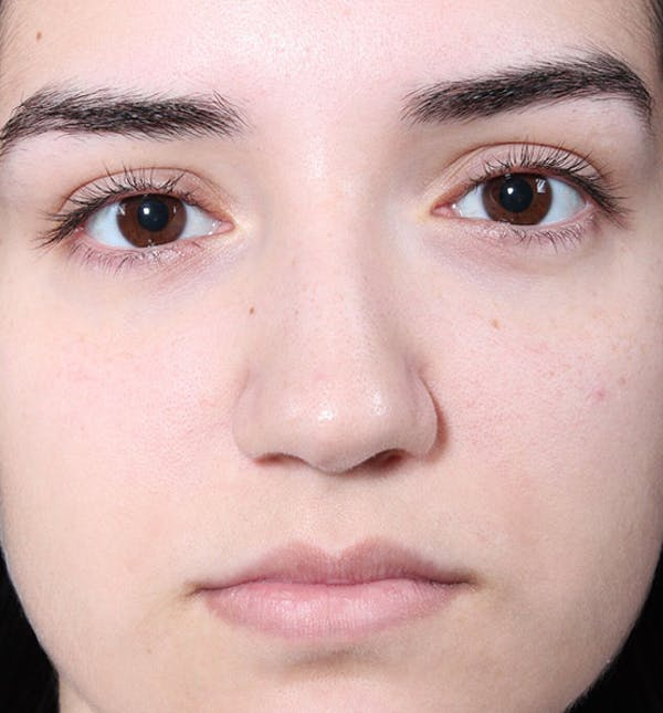 Non-Surgical Rhinoplasty Gallery - Patient 14089538 - Image 3