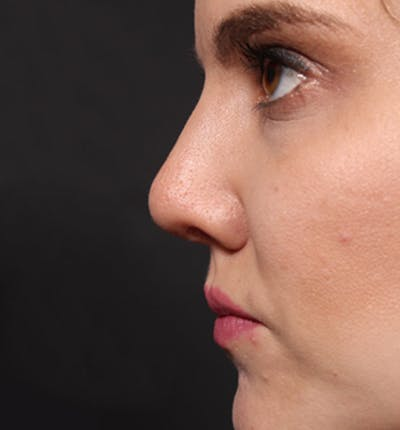Rhinoplasty Gallery - Patient 14089536 - Image 6