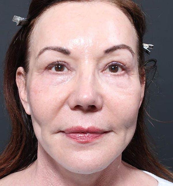 Facelift Gallery - Patient 14089535 - Image 4
