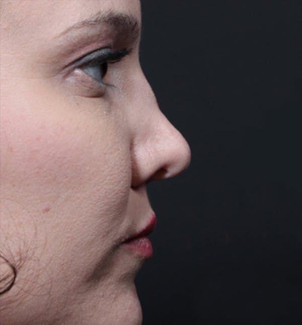 Rhinoplasty Gallery - Patient 14089536 - Image 7