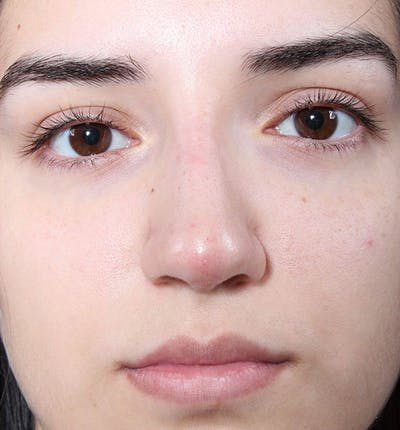 Non-Surgical Rhinoplasty Gallery - Patient 14089538 - Image 4