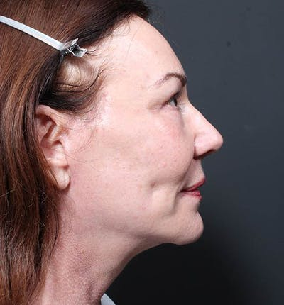 Facelift Gallery - Patient 14089535 - Image 6