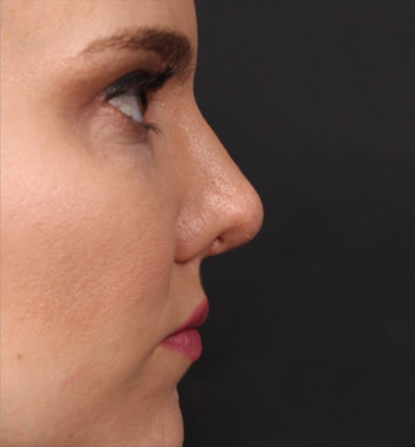 Rhinoplasty Gallery - Patient 14089536 - Image 8