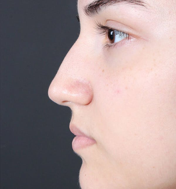 Non-Surgical Rhinoplasty Gallery - Patient 14089538 - Image 5