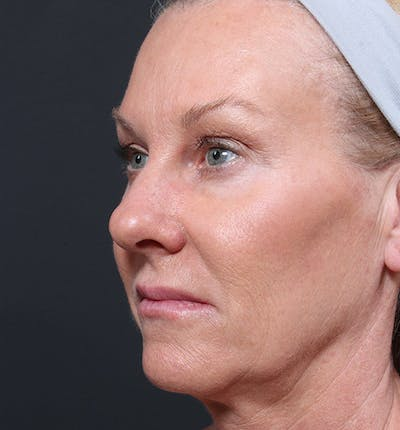 Facelift Gallery - Patient 14089539 - Image 1