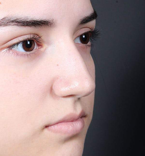 Non-Surgical Rhinoplasty Gallery - Patient 14089538 - Image 7