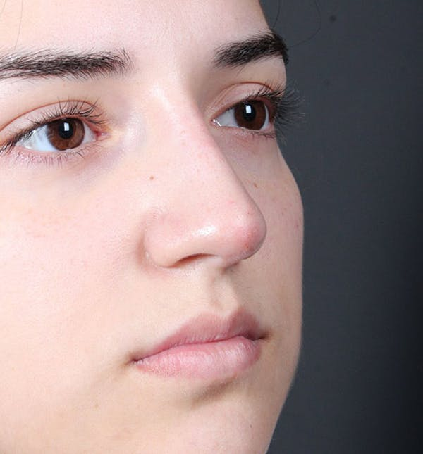 Non-Surgical Rhinoplasty Gallery - Patient 14089538 - Image 8