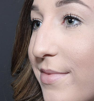 Rhinoplasty Gallery - Patient 14089540 - Image 1