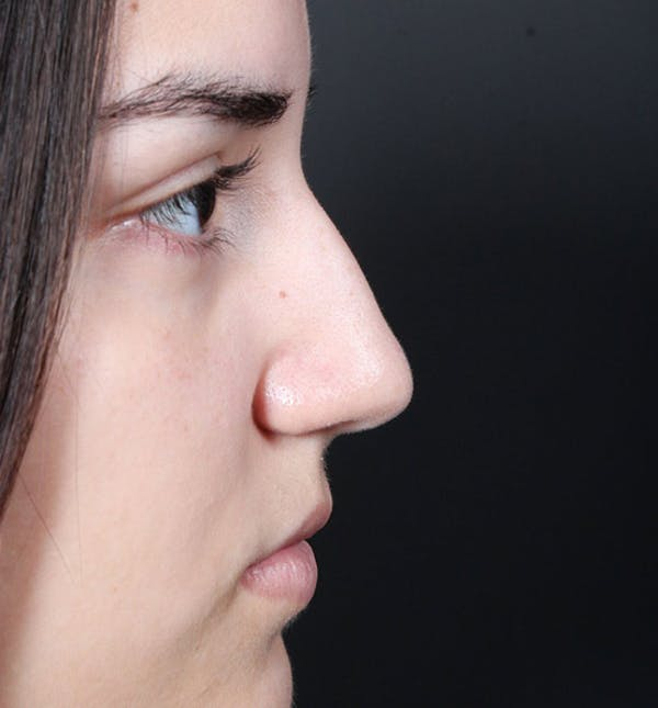 Non-Surgical Rhinoplasty Gallery - Patient 14089538 - Image 9