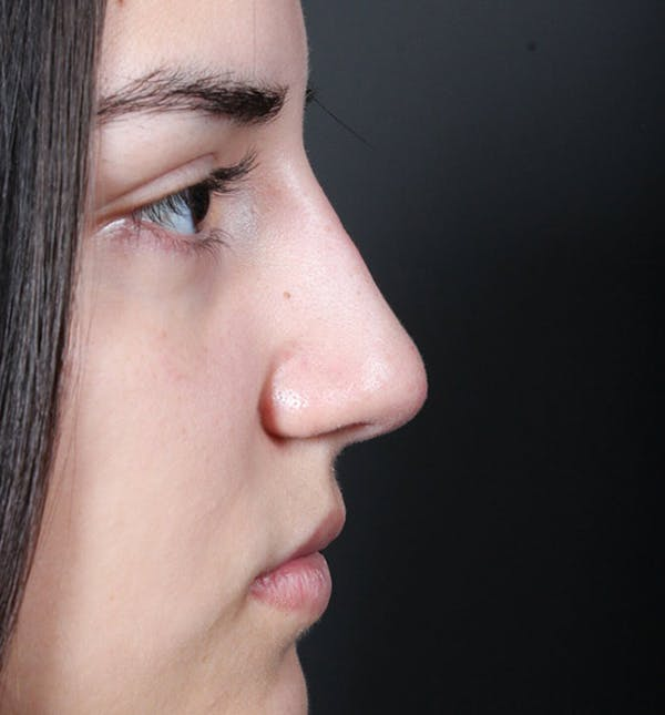 Non-Surgical Rhinoplasty Gallery - Patient 14089538 - Image 10