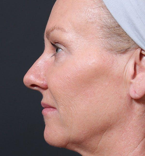 Facelift Gallery - Patient 14089539 - Image 5