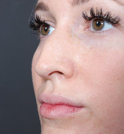 Non-Surgical Rhinoplasty Gallery - Patient 14089543 - Image 1