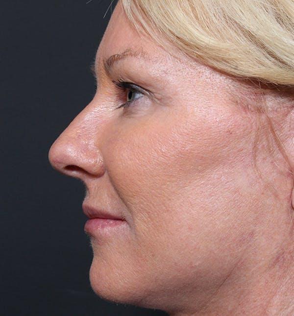 Facelift Gallery - Patient 14089539 - Image 6