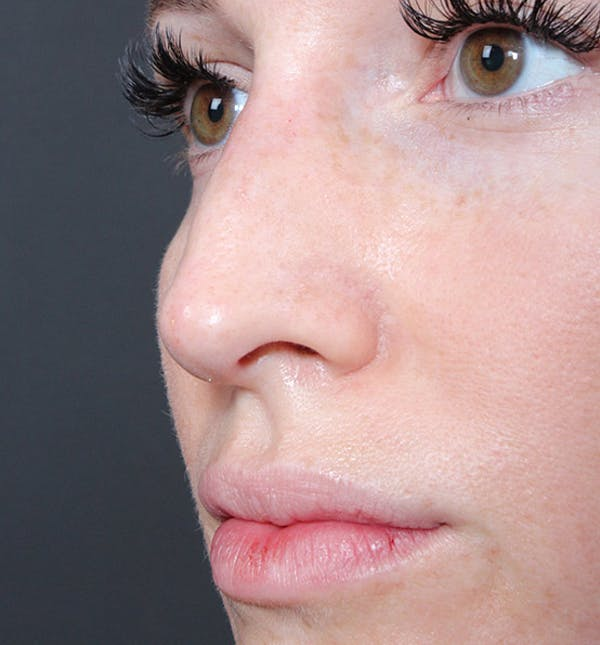 Non-Surgical Rhinoplasty Gallery - Patient 14089543 - Image 2