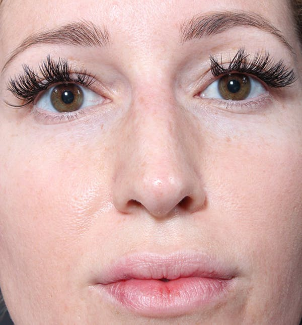 Non-Surgical Rhinoplasty Gallery - Patient 14089543 - Image 4