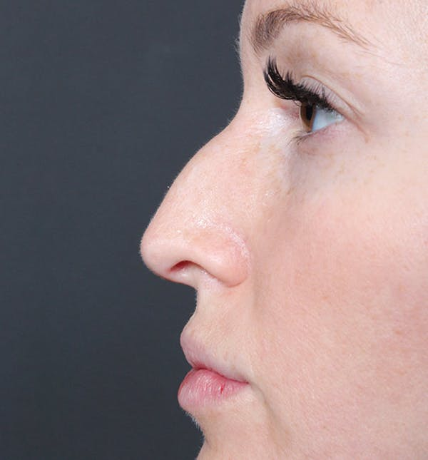 Non-Surgical Rhinoplasty Gallery - Patient 14089543 - Image 5