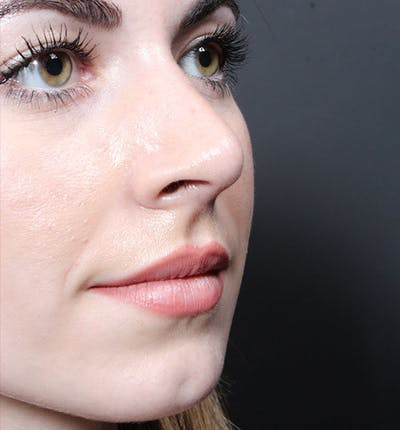 Rhinoplasty Gallery - Patient 14089547 - Image 2